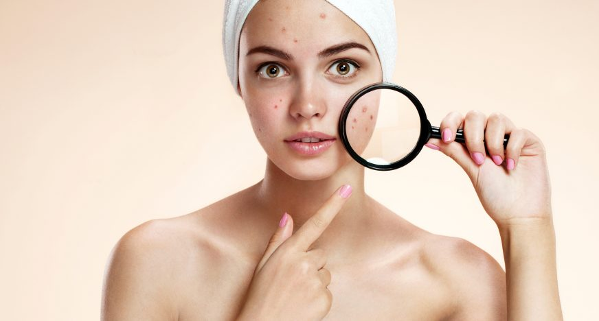 The best places to Get Acne Advice