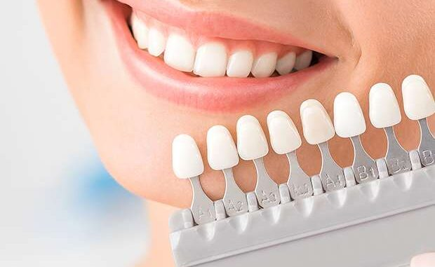 Teeth Veneer Essentials