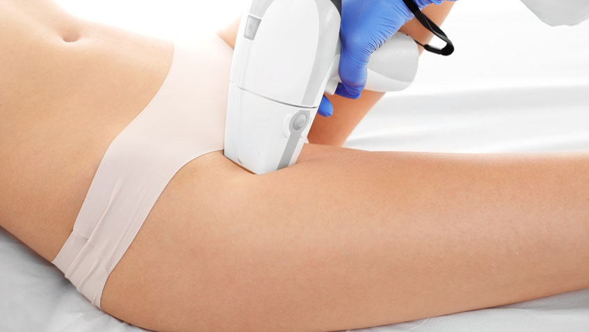 What Are The Benefits Of Ipl Hair Removal?