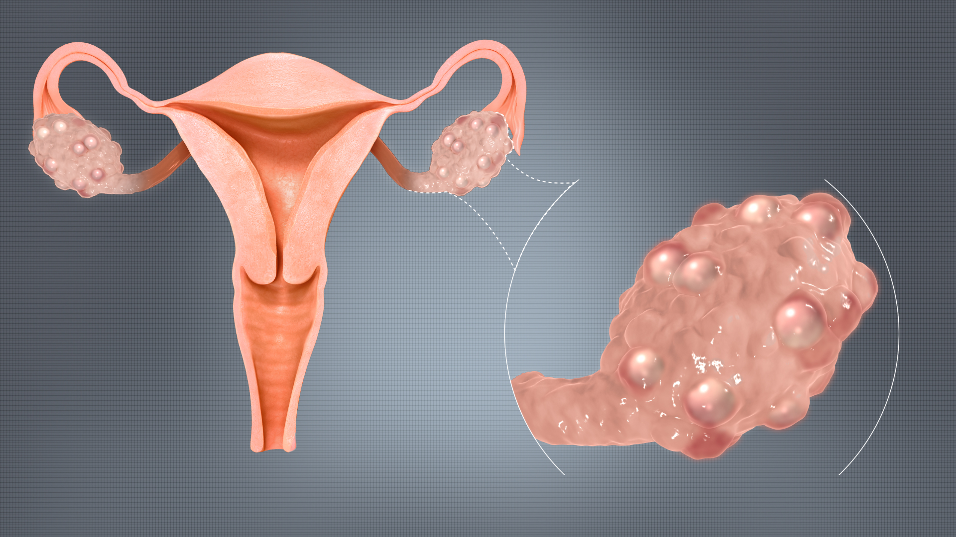 Polycystic Ovarian Disease: Causes, Symptoms and PCOD Solutions