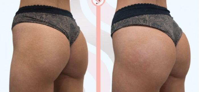 Sculptra Butt Injections are One of The Two Best Treatments for Natural Looking Curves
