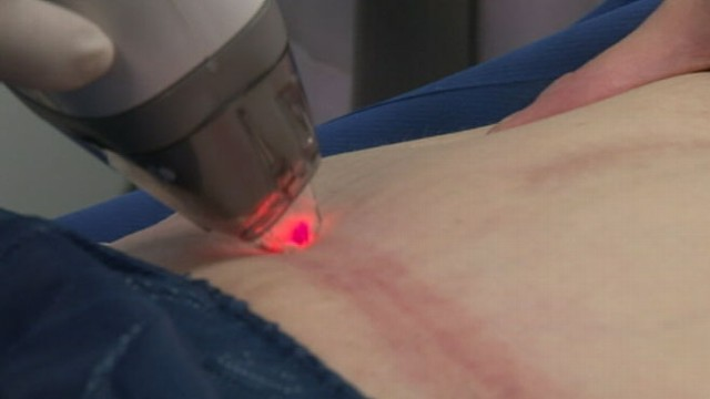 Things to know about C scar removal